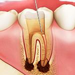 虫歯・精密根管治療