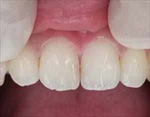 見た目に配慮した前歯の虫歯治療について