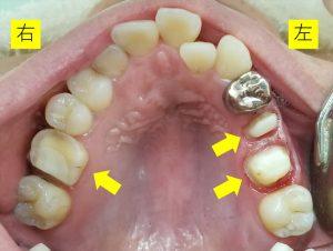 銀歯とセラミックの被せ物
