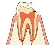 虫歯治療の様々な考え方