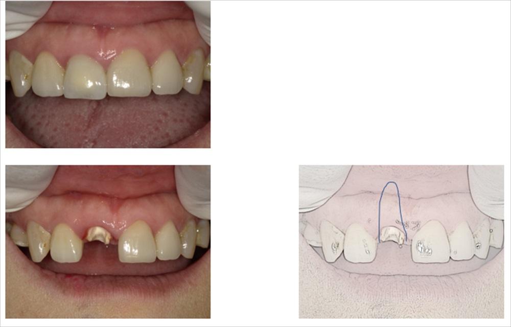 前歯のセラミック修復