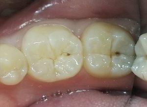 小さく見える虫歯も注意