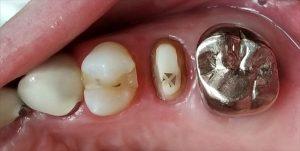 奥歯のセラミックの被せ物