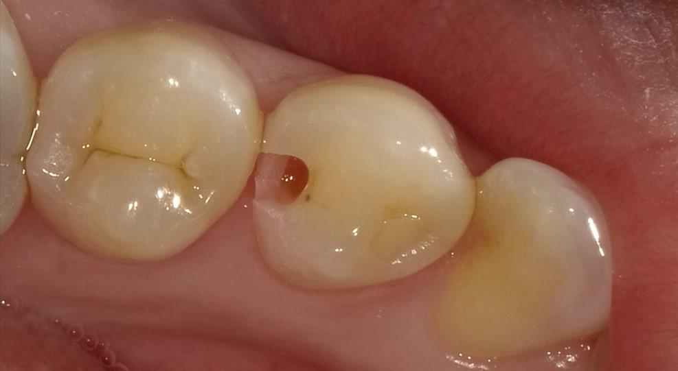 健康な歯を残すためのこだわり