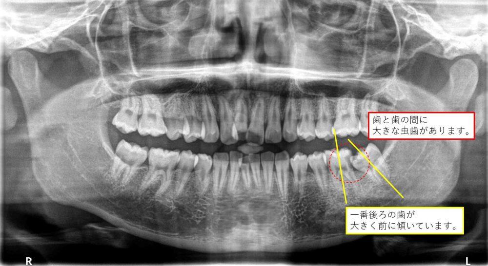 歯並びと虫歯