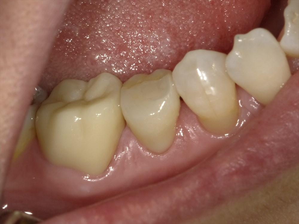 天然歯に近い透明感のあるセラミック修復