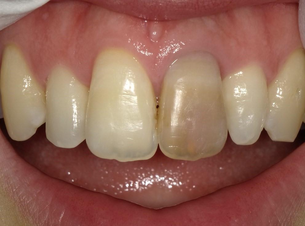 仮歯の作成