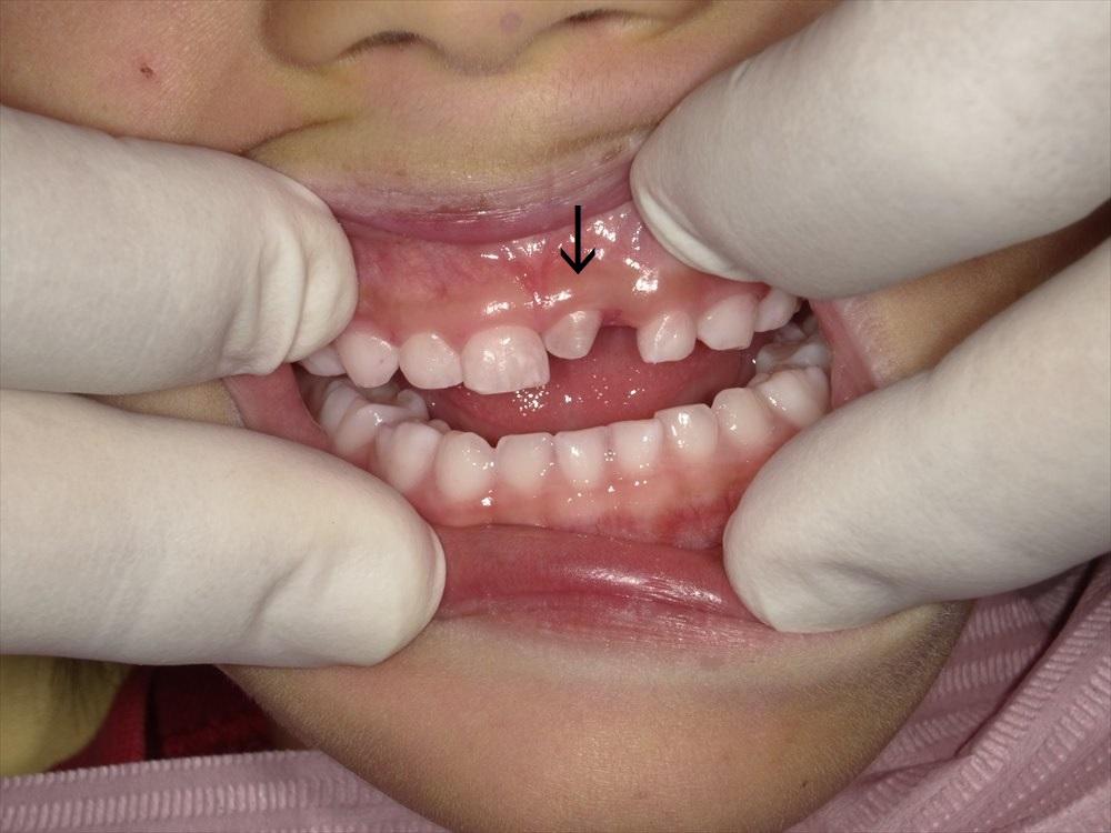 過剰歯について