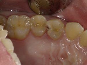 歯科検診のススメ