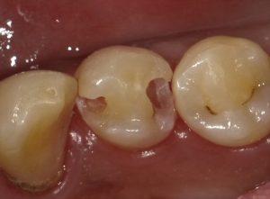 虫歯と咬む力の関係