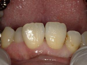 見た目に配慮した虫歯の治療