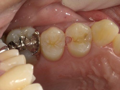 健康な歯を残したい人の為の虫歯治療について