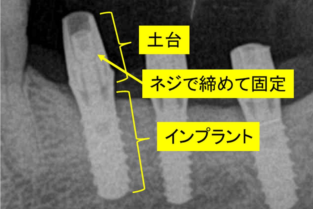 インプラントの構造と治療手順