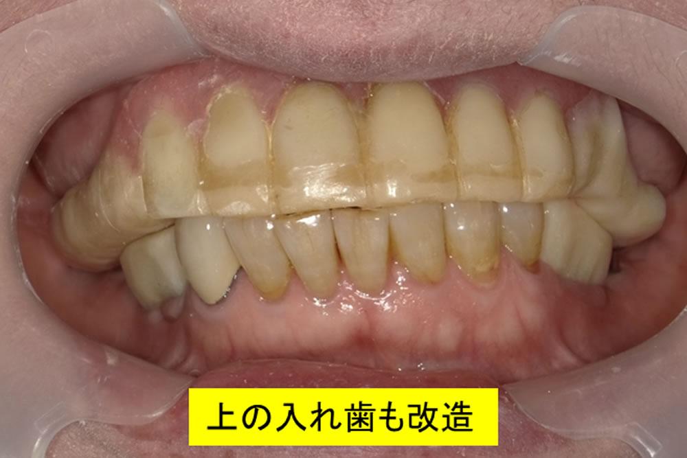 仮歯での調整