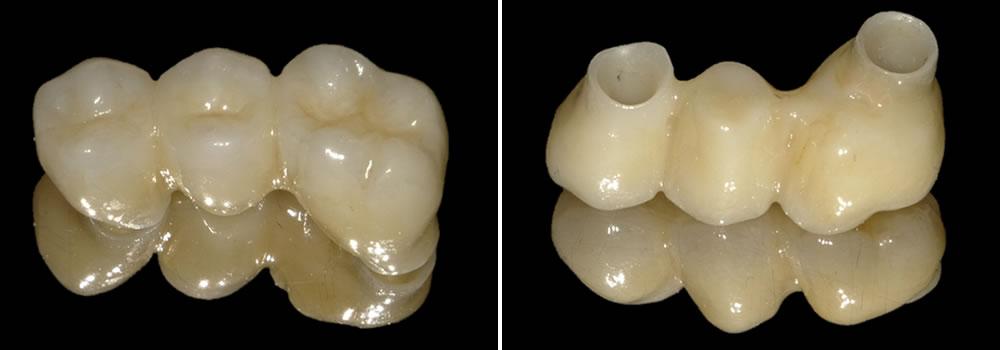 被せ物(人工歯)