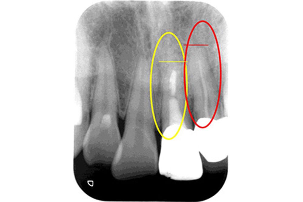 他の歯科医院での根の治療