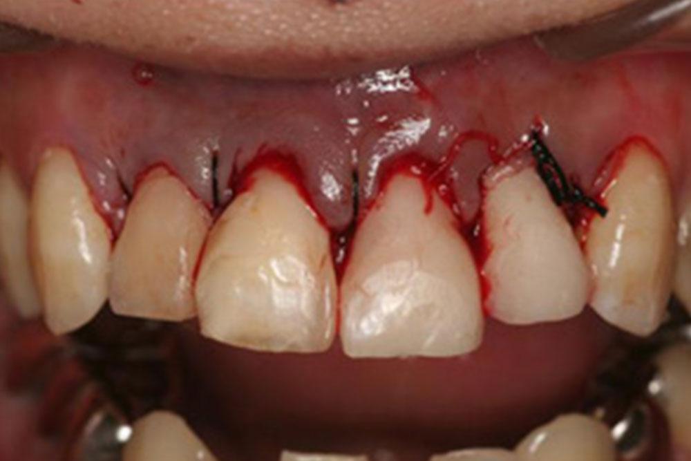 歯茎のライン