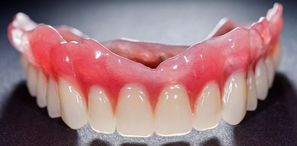 高精度な入れ歯
