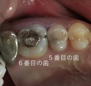 虫歯の特徴について