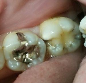 取り残されやすい、奥歯の虫歯について