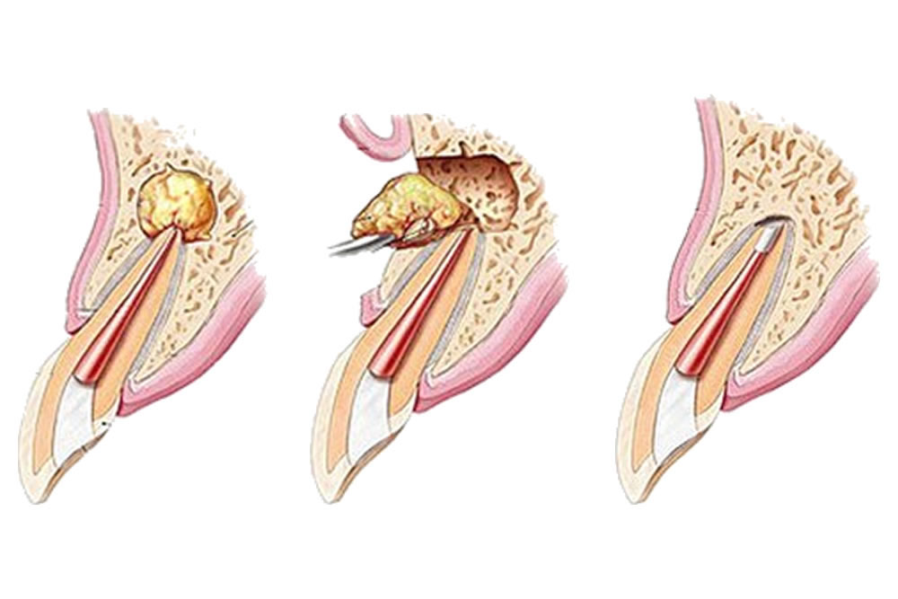 歯根端切除・歯の再植術