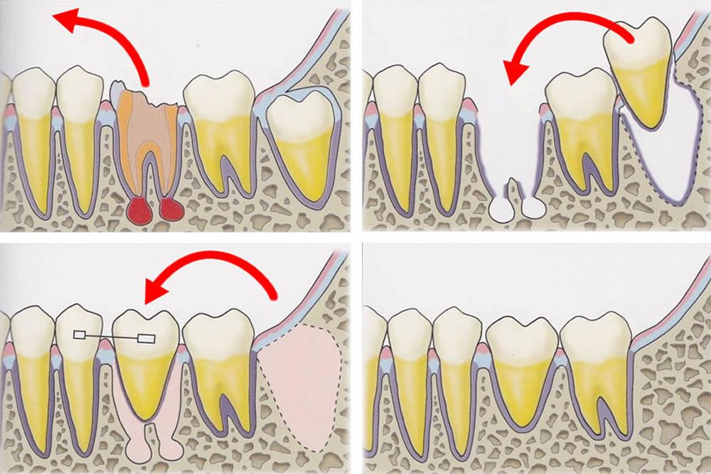 自身の歯の移植