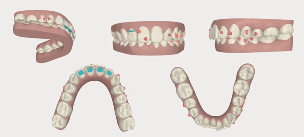 非抜歯で行なう歯列の矯正