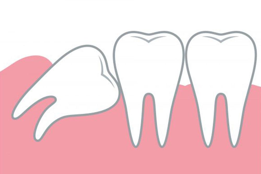 歯列を乱す