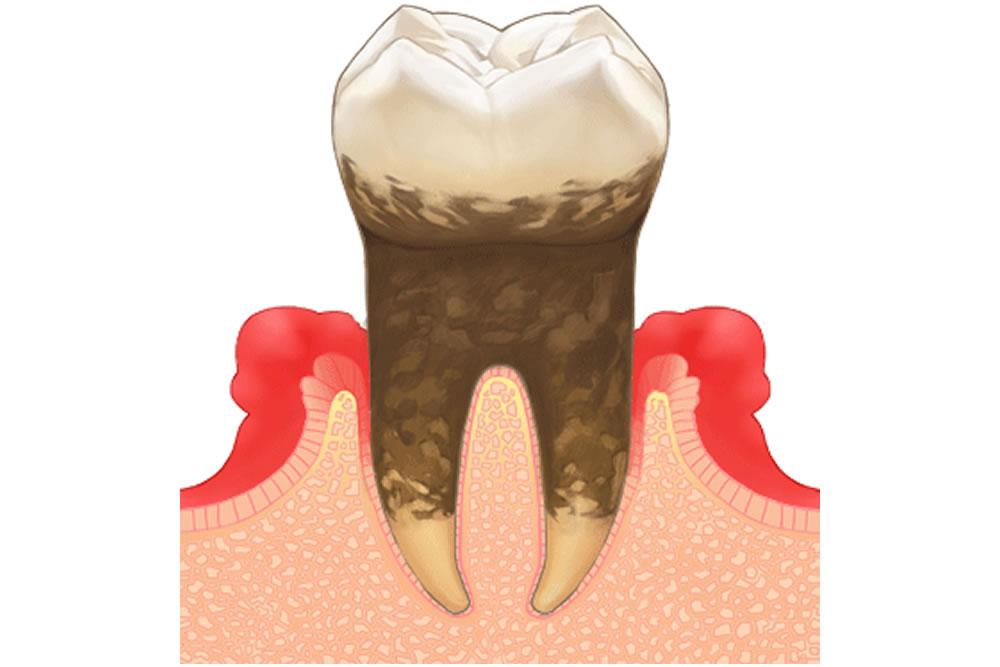 智歯周囲炎を起こしている